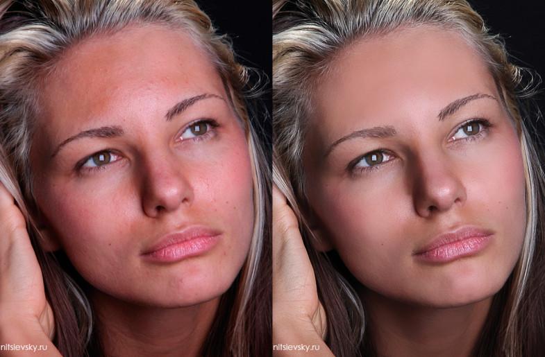 Обработка кожи в фотошопе (До и После)